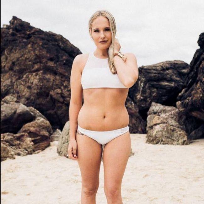 Больная анорексией девушка набрала 40 кг за 7 месяцев (16 фото)
