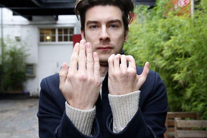 Британцу с синдромом Поланда пересадили пальцы ног на руку (5 фото)
