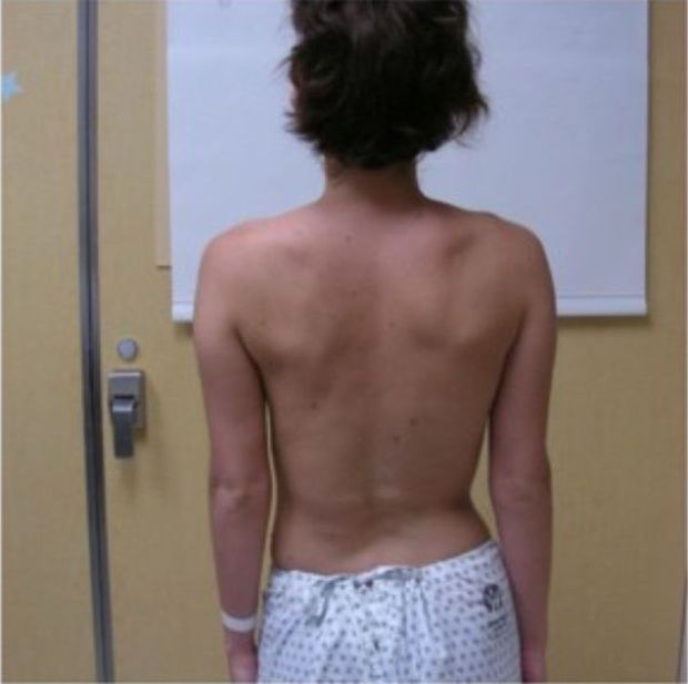 Девушка, которая сумела побороть сколиоз (9 фото)