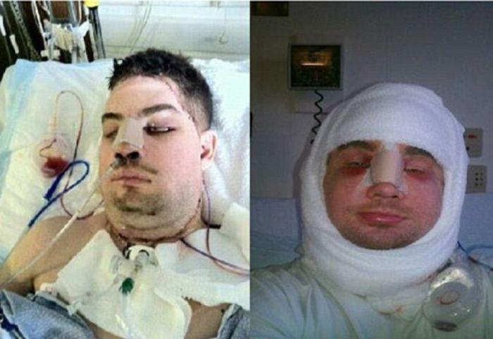 Американские медики вернули мужчине с изуродованным лицом человеческий облик (12 фото)