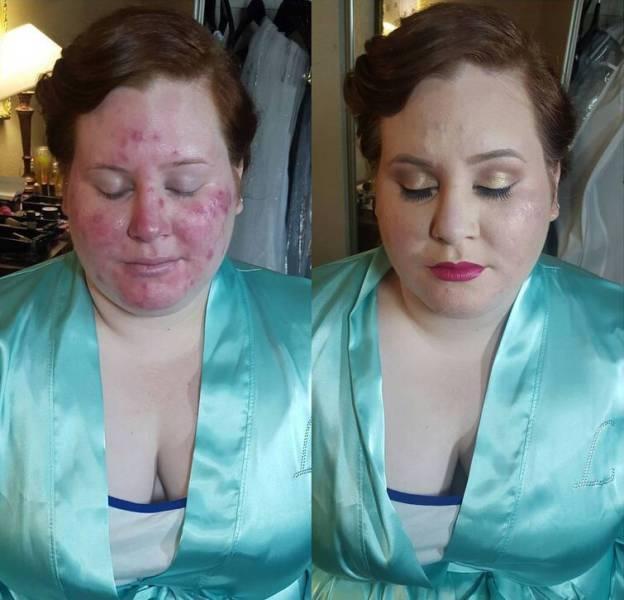 Проблемная кожа и чудеса макияжа (22 фото)