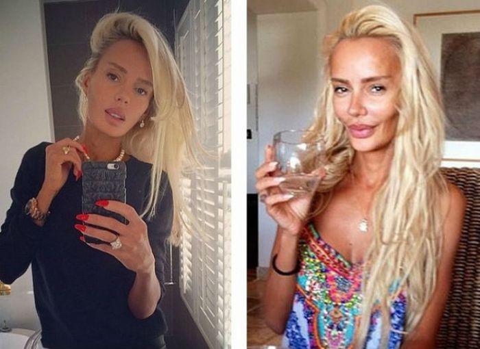 Известные россиянки до и после пластики (10 фото)