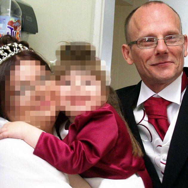 Британские власти признали трудоспособным мужчину, лишившегося части черепа (3 фото)