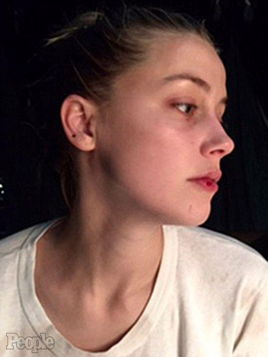 Супруга Джонни Деппа Эмбер Херд опубликовала новые фото с побоями на лице (4 фото)