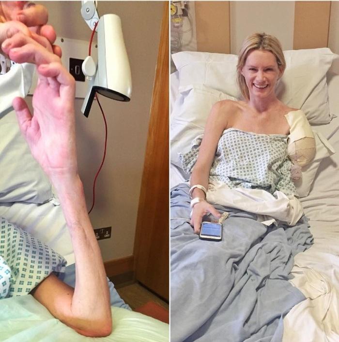 Оливия Джексон, дублерша Миллы Йовович, лишилась руки после неудачного трюка на съемках «Обитель зла 7» (6 фото)