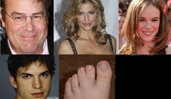 Физические дефекты знаменитостей (22 фото)