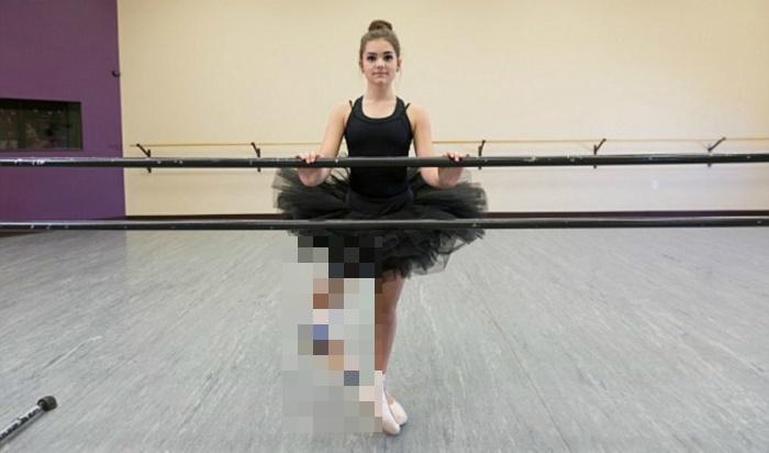 Девушка с ампутированной ногой стала превосходной танцовщицей (10 фото)