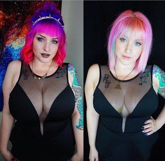 Женщина вынуждена была уменьшить размер груди (5 фото)