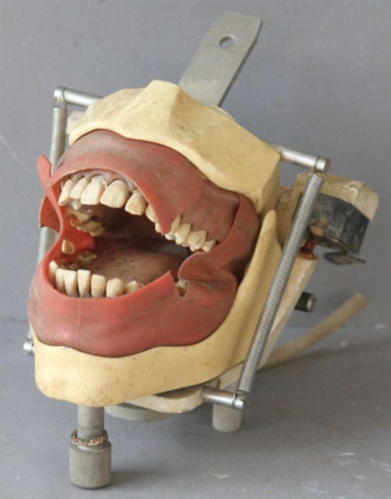 Жуткие стоматологические инструменты прошлых лет (20 фото)