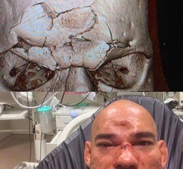 Боец ММА Майкл Пэйдж отправил соперника в нокаут, проломив ему череп (2 фото)