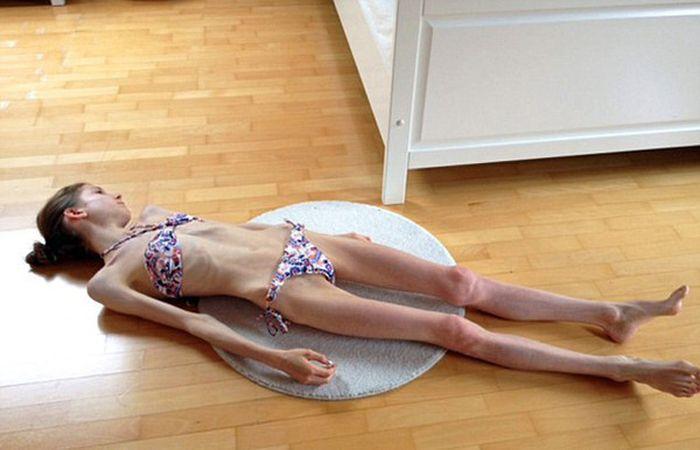 Как любовь вернула школьницу, страдающую анорексией, к нормальной жизни (4 фото)