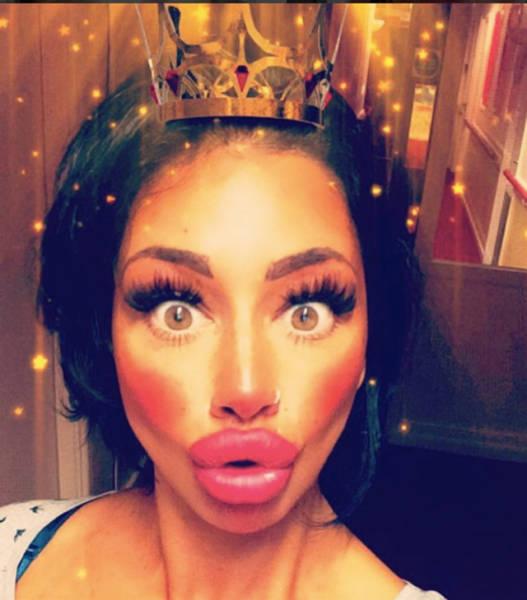 Девушка потратила более 2000 долларов на увеличение губ, но все еще не считает их большими (11 фото)