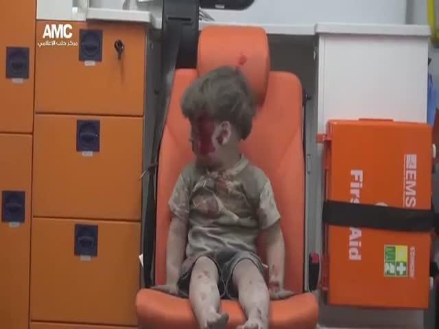 5-летний мальчик стал символом гражданской войны в Сирии