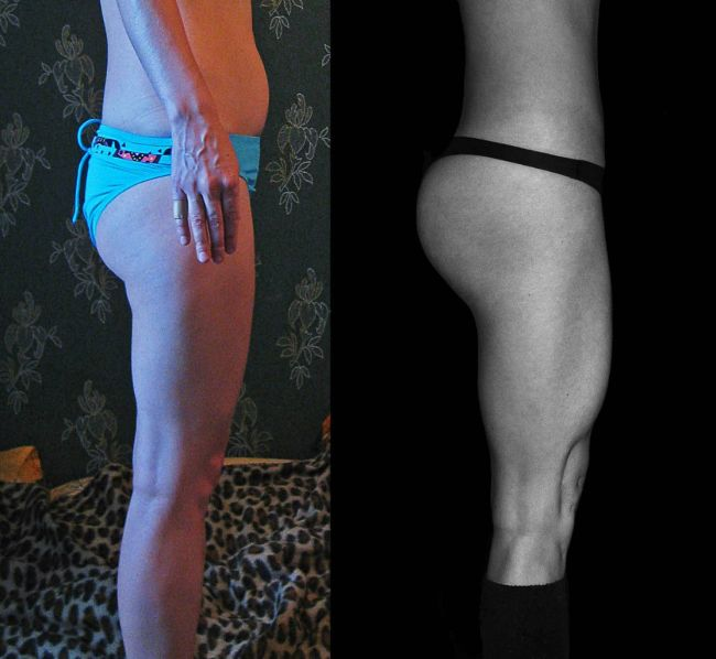 Минус 13 кг веса и четыре размера груди (6 фото)