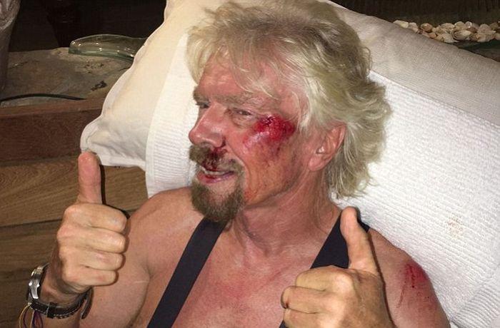 Миллиардер Ричард Брэнсон травмировался во время велопрогулки (7 фото)