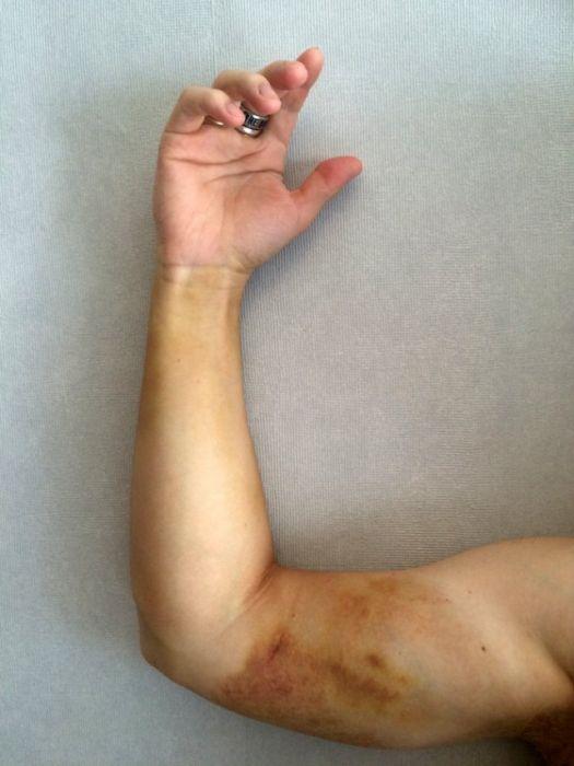 Как наш организм переносит укус гадюки (19 фото)