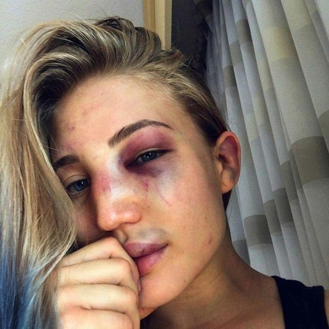 Анастасия Янькова до и после боя с Ветой Артеагой (3 фото + видео)