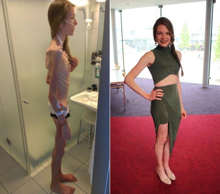 Девушка поборола анорексию (5 фото)