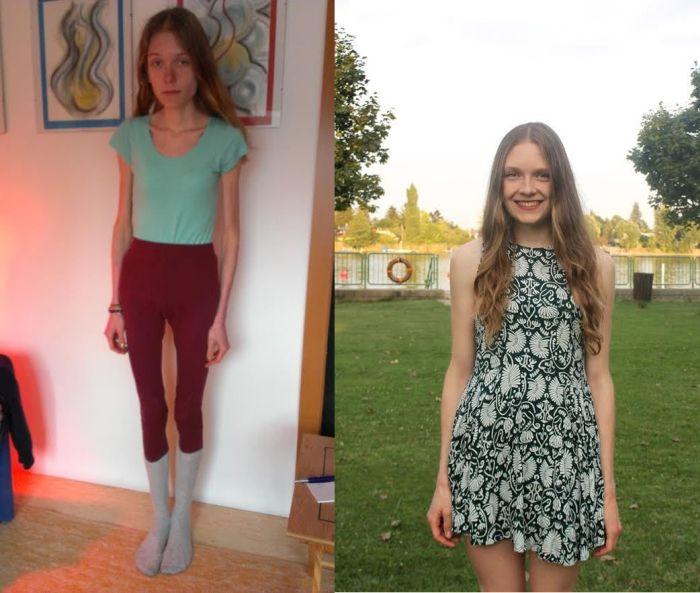 Похудение Подростков 12 Лет. Как можно похудеть подростку в 12 лет за неделю на 10 кг в домашних условиях, и стоит ли это делать?