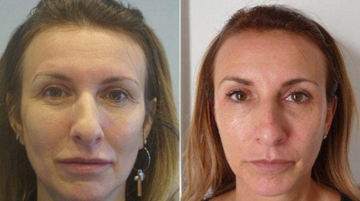Кто из этих женщин никогда не посещал пластических хирургов? (4 фото)