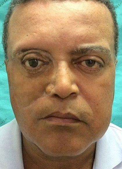 Бразильцу изготовили лицевой протез с помощью смартфона и 3D-принтера (3 фото)