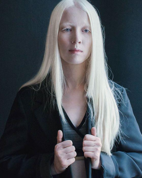 Albino Hastalığına Yakalanmış Güzel İnsanlar (32 Fotograf)