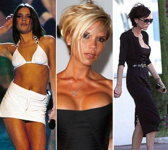 Знаменитости, которые уменьшили грудь (47 фото)