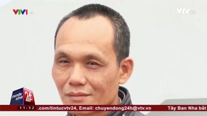 Во Вьетнаме из тела мужчины извлекли зажим, забытый 18 лет назад (3 фото)