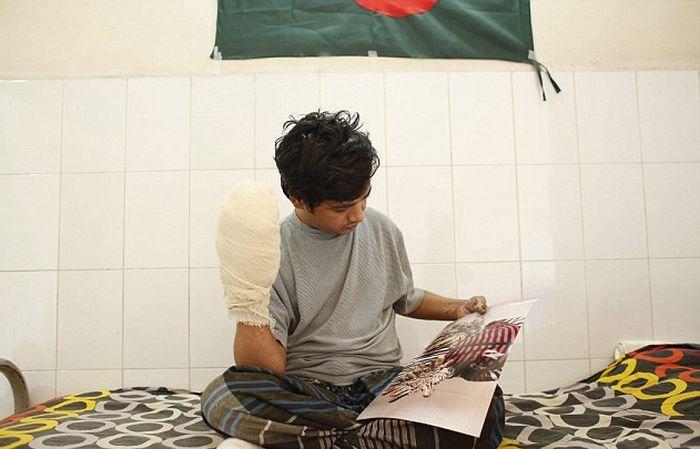 «Человек-дерево» из Бангладеш перенес 16 операций по удалению наростов на конечностях (6 фото)