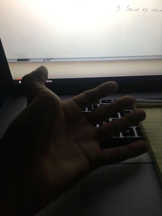Участники нового флешмоба делятся снимками вывихнутых пальцев (14 фото)