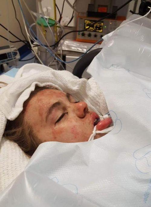 Юная девушка после приема таблеток экстази (3 фото)
