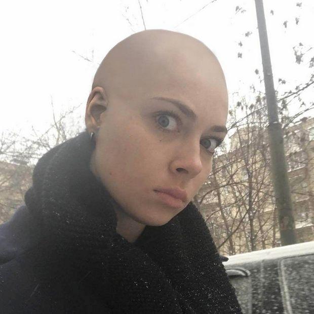 Актриса Настасья Самбурская побрилась налысо из-за проигранного спора (2 фото)
