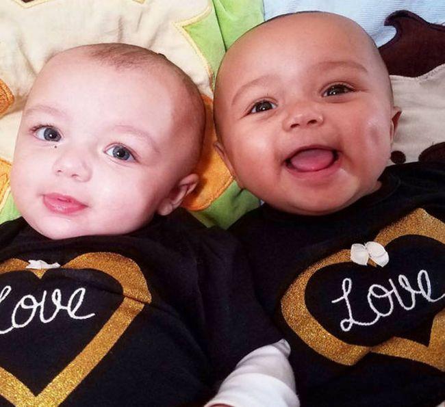 Сестры-близнецы с разным цветом кожи покорили пользователей сети (5 фото)