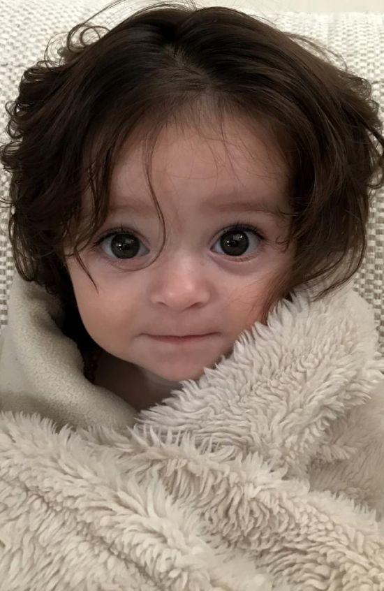 Девочка, волосы которой были видны еще на УЗИ (4 фото)
