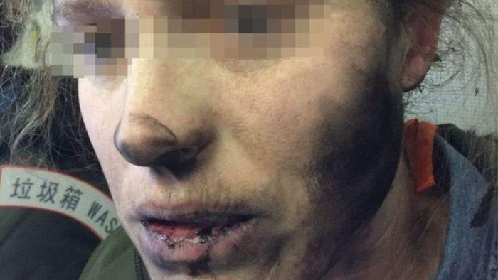 У пассажирки самолета взорвались наушники (2 фото)