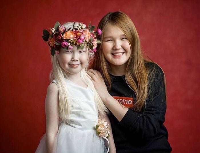 8-летняя девочка-альбинос Нарияна, которую зовут «Снежной королевой» (7 фото)