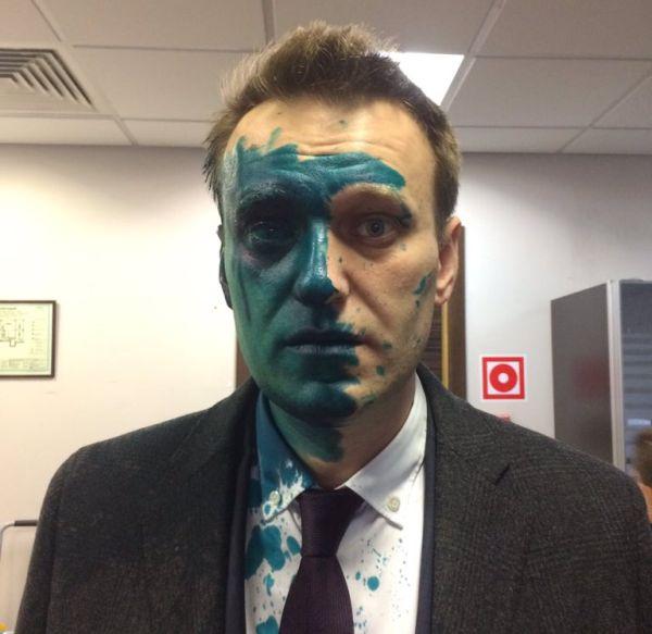 Оппозиционера Алексея Навального вновь облили зеленкой (2 фото)