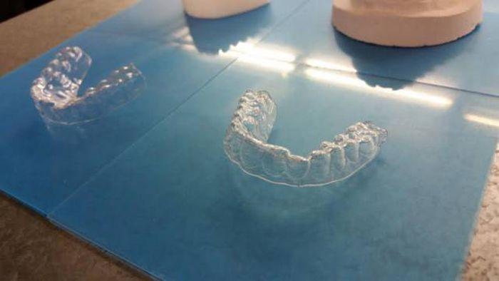 Парень выровнял зубы с помощью самодельных брекетов, напечатанных на 3D-принтере (11 фото)