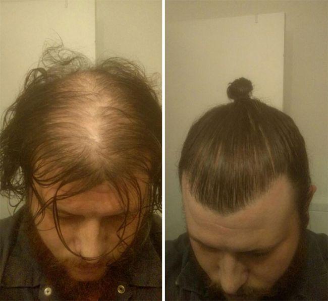 Длинные волосы позволяют скрыть проблему выпадения волос (5 фото)