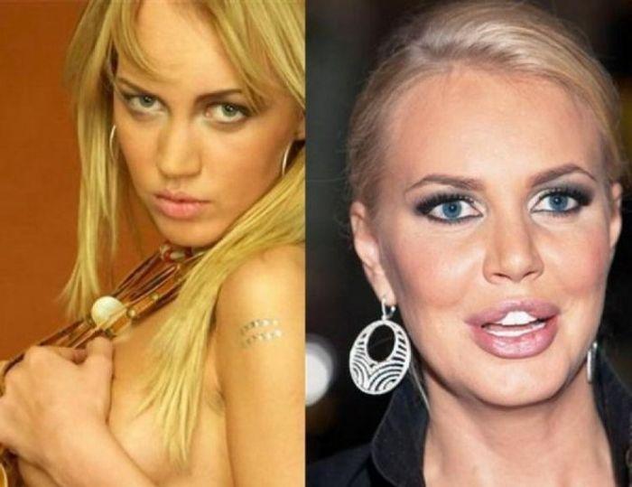 Звезды российского шоу-бизнеса до пластических операций и после них (45 фото)