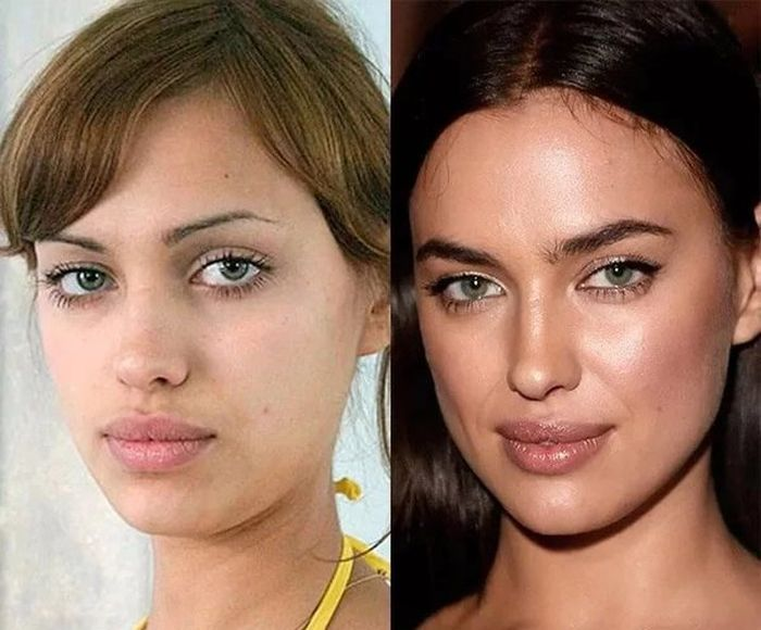 Российские звезды до пластических операций и после (10 фото)