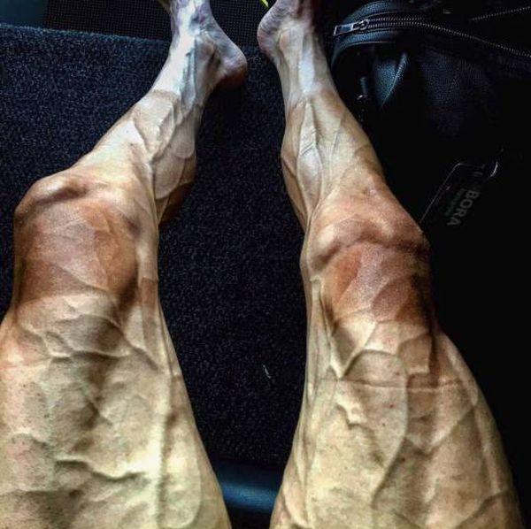 Ноги велогонщика Павла Полянски после 16 этапов «Тур де Франс» (2 фото)