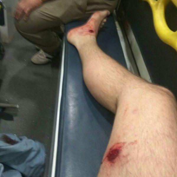 Дорожный конфликт перерос в кровопролитие (6 фото)