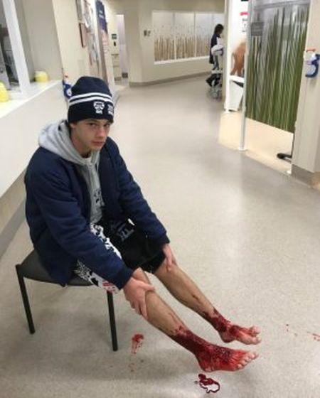 Неизвестные существа искусали ноги австралийского подростка (5 фото)