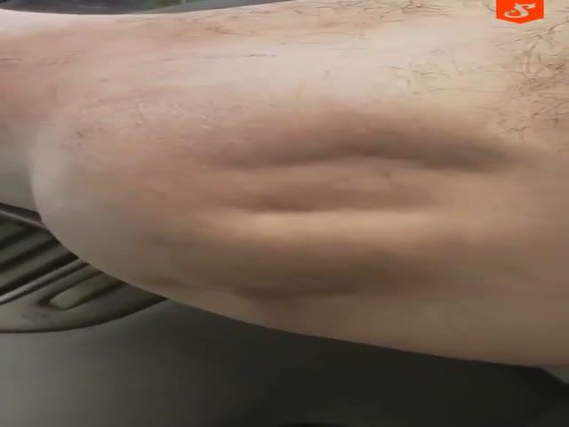 Парню свело ногу