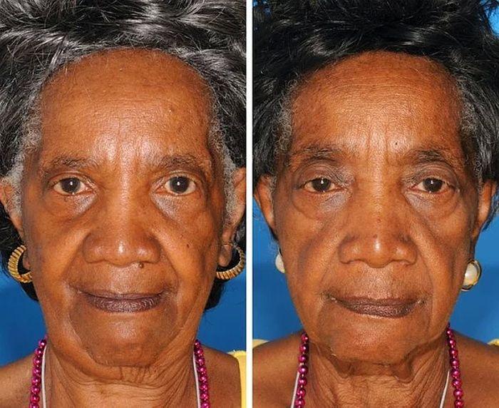 Лица близнецов, один из которых курит, а другой – нет (8 фото)