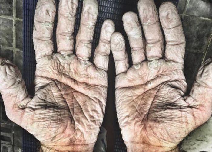 Руки гребца Алекса Грегори после 1000-километрового полярного похода (2 фото)