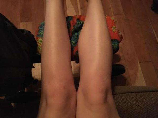 Что будет, если долго не использовать свою ногу (2 фото)