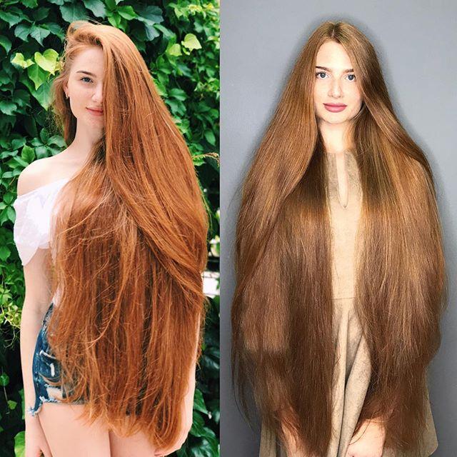 Девушка с роскошными волосами, которая ранее страдала от облысения (28 фото)