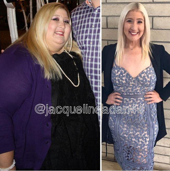 Девушка, сбросившая 160 кг, теперь борется с лишней кожей (7 фото)